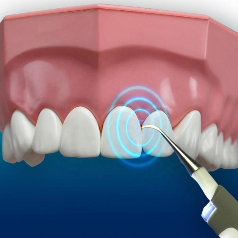 Elektromos fogtisztító – hangvibrációs / implantátum, korona, fogszabályzó és tömésbiztos
